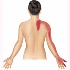Shoulder Referred Pain